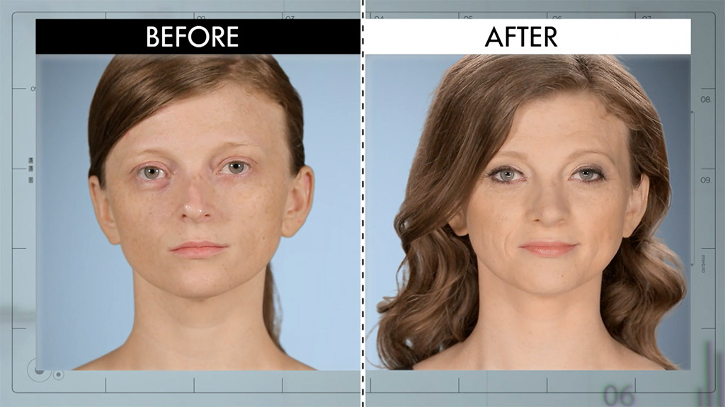 Botched 416, Before and After, Jessica